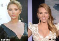 Scarlett Johansson boob job
