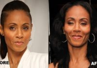 Jada Pinkett Before And After Plastic Surgery