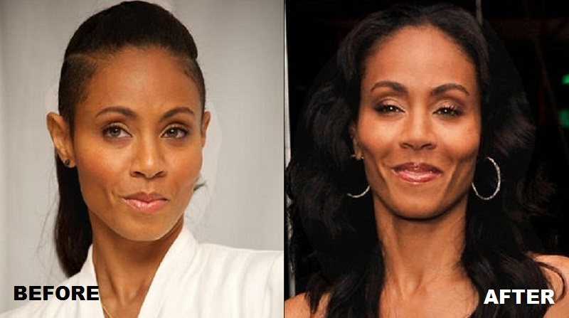 Jada Pinkett Smith Before And After Plastic Surgery