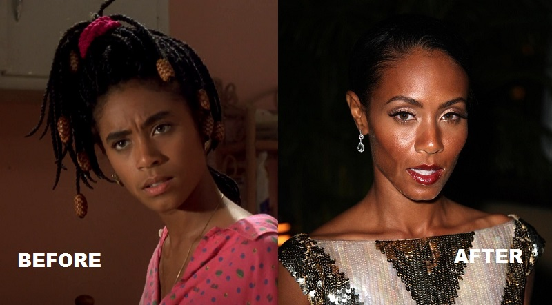 Jada-Pinkett-Smith-before-and-after-plastic-surgery-3