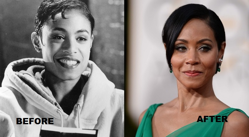 Jada-Pinkett-Smith-before-and-after