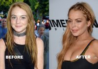 Lindsay Lohan before and after plastic surgeries