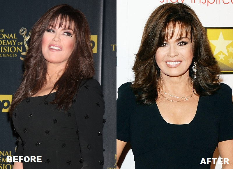 Marie Osmond Breast Reduction Before And After