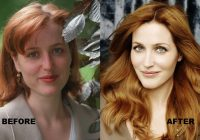 Gillian Anderson before and after lifting procedure