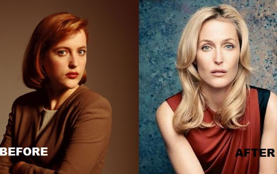 Gillian Anderson before and after lips plastic
