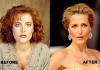 Gillian Anderson before and after nose job