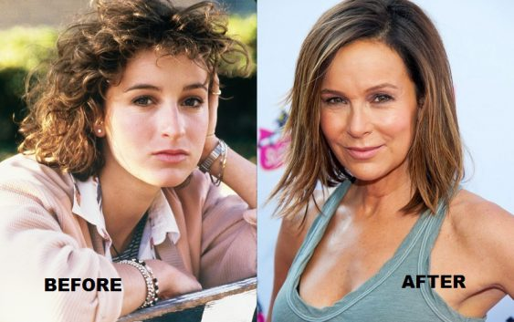 Jennifer Grey before and after lifting