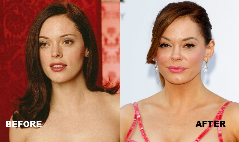 Rose McGowan plastic surgery before and after